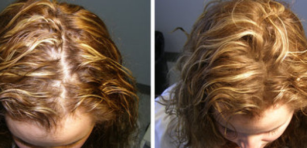 hair-thickening-fibers-before-after